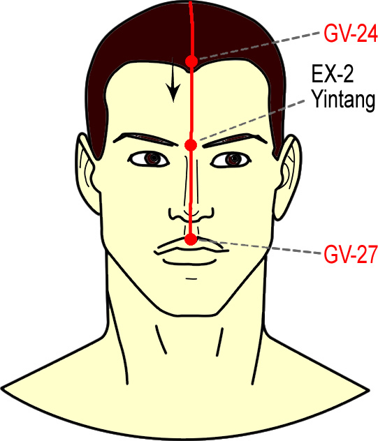 Mkgreallifeblog Acupuncture Points